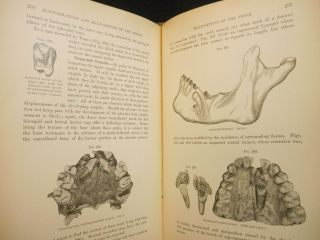 A Text-Book of Dental Pathology and Therapeutics, including Pharmacology. Being a Treatise on...