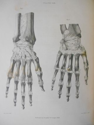 A Treatise on Ligaments. Bransby B. Cooper, John Graves